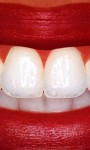 Remove a lot of the plaque on your teeth with amazing teeth whitening systems